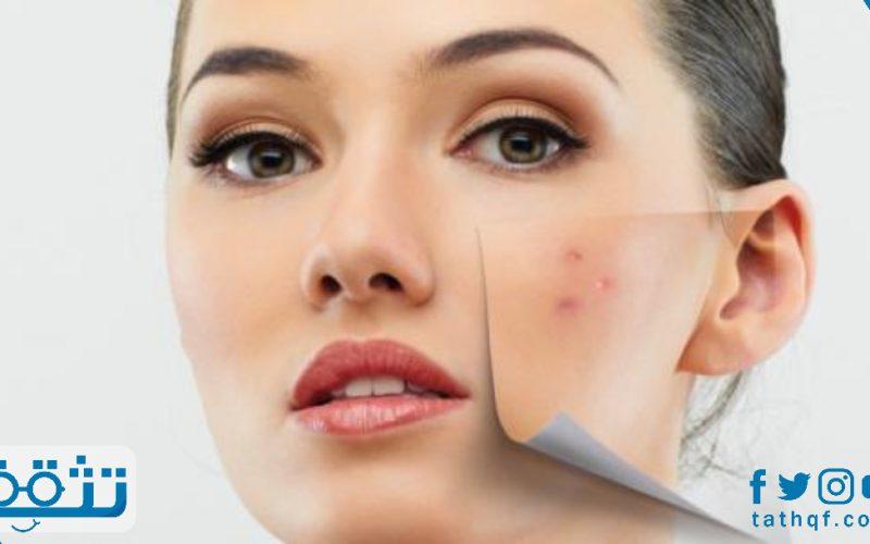 تقشير الوجه للبشرة الدهنية بأفضل 8 وصفات طبيعية
