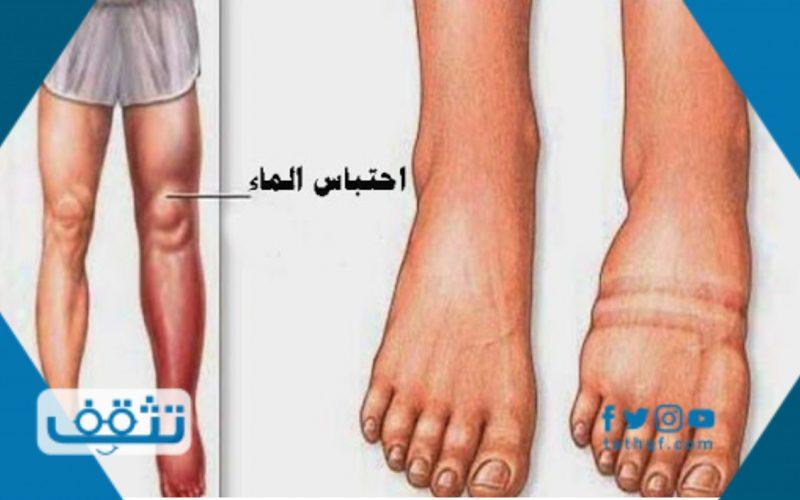 علاج احتباس السوائل في الجسم بالاعشاب